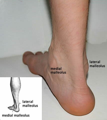 how to tell if your ankle is more than sprained