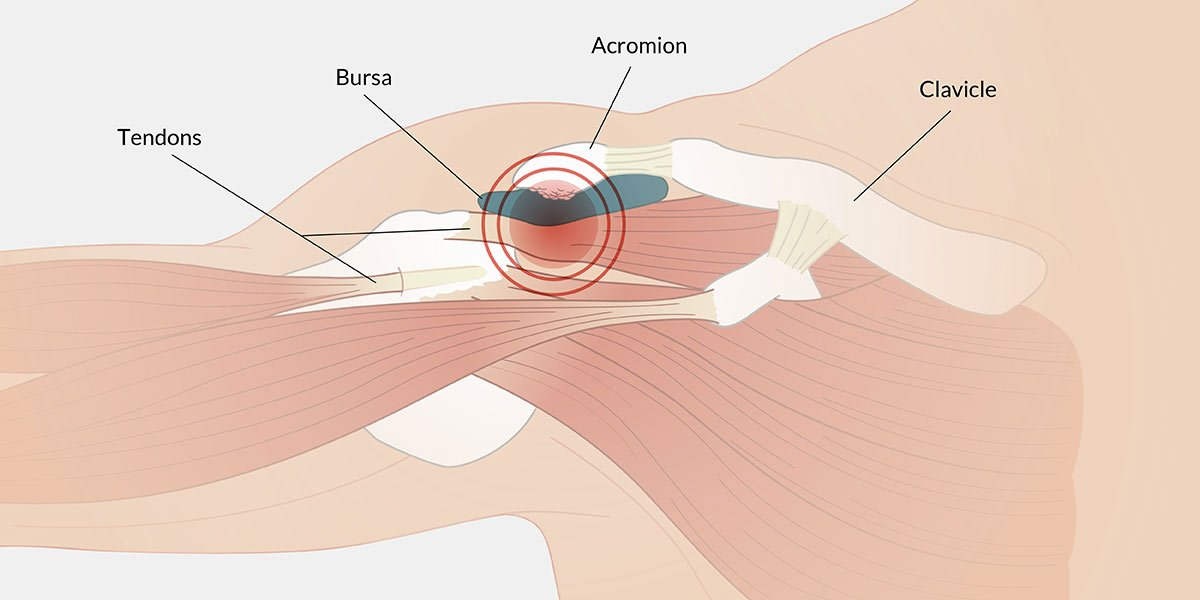 What Is Causing Your Shoulder Painshawe Physio Physiotherapy